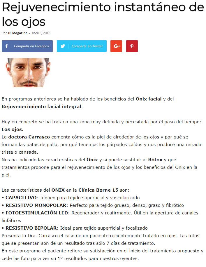 rejuvenecimiento-ojos-palma-mallorca-clinica-medicina-estetica-borne-15
