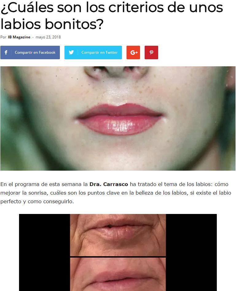 botox-labios-palma-mallorca-clinica-medicina-estetica-borne-15