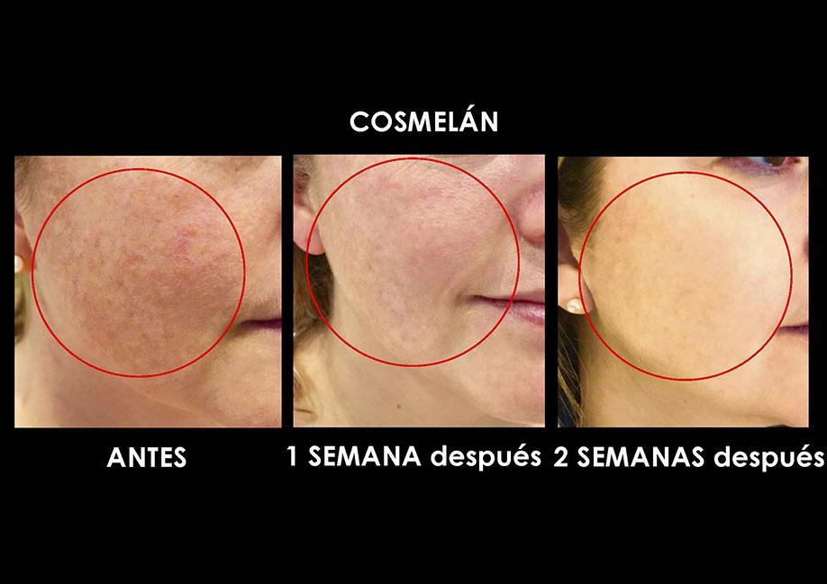 cosmelan-quitar-manchas-sol-palma-mallorca-clinica-medicina-estetica-3