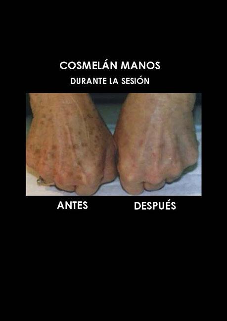 cosmelan-quitar-manchas-sol-palma-mallorca-clinica-medicina-estetica