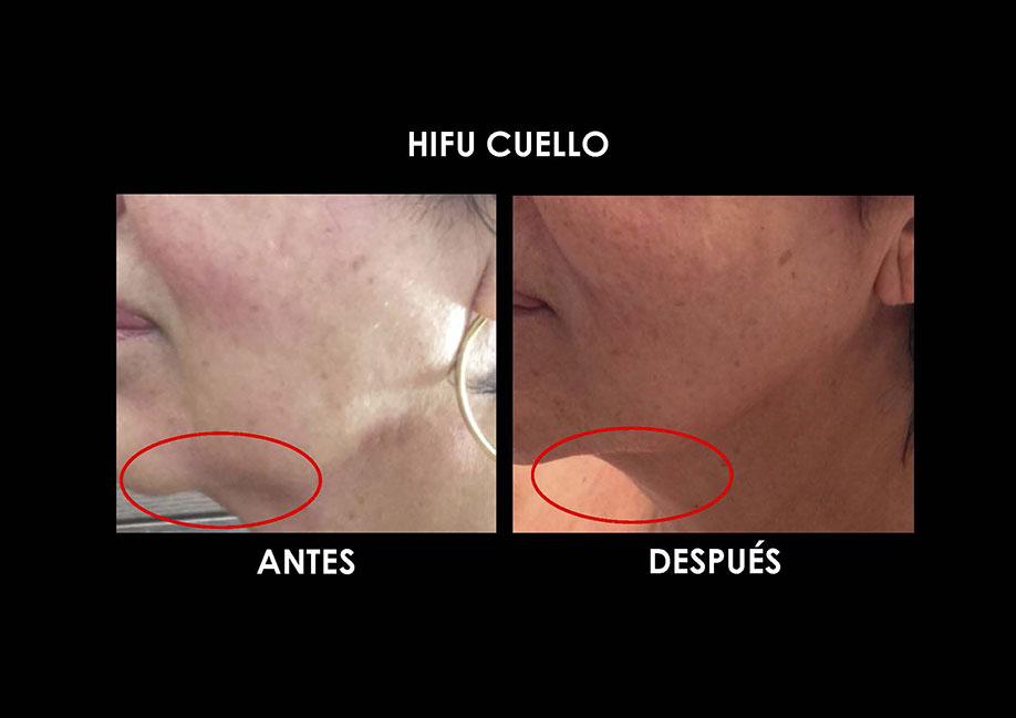 hifu-cuello-palma-mallorca-clinica-medicina-estetica