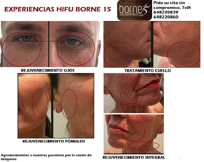 hifu-facial-palma-mallorca-clinica-medicina-estetica-3