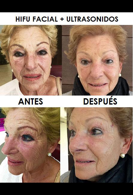 hifu-facial-palma-mallorca-clinica-medicina-estetica