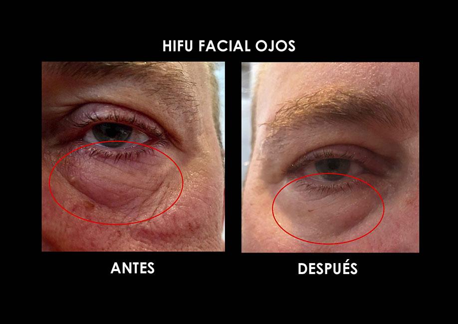 hifu-ojos-palma-mallorca-clinica-medicina-estetica-1