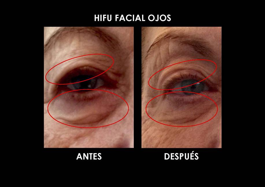 hifu-ojos-palma-mallorca-clinica-medicina-estetica-2