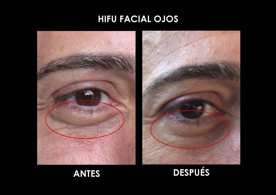 hifu-ojos-palma-mallorca-clinica-medicina-estetica-3