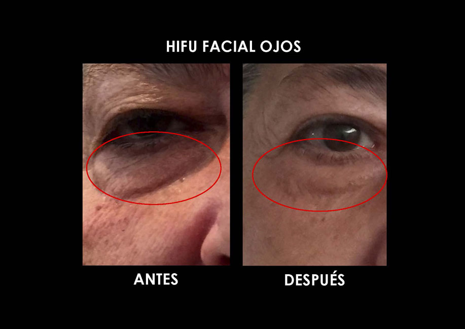 hifu-ojos-palma-mallorca-clinica-medicina-estetica-4