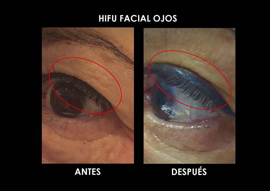 hifu-ojos-palma-mallorca-clinica-medicina-estetica