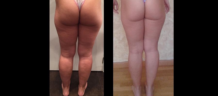 Antes y después hifu piernas