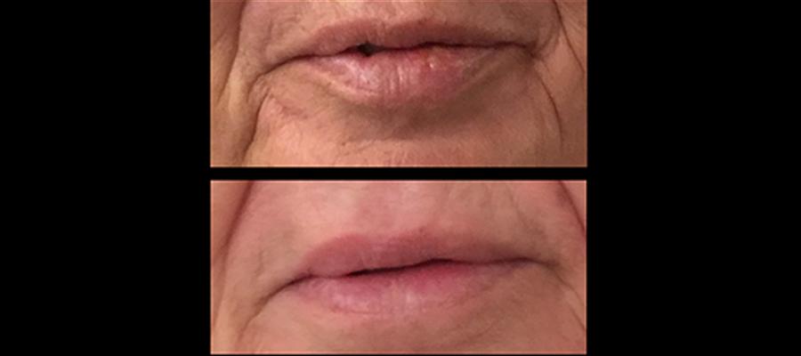 Antes y Después Implante Labial