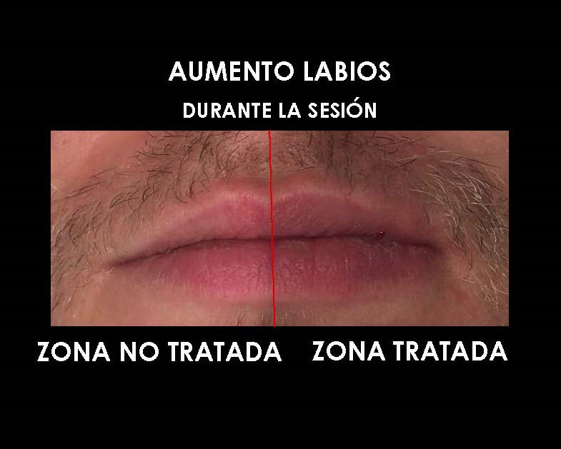 aumento-labios-clinica-medicina-estetica-palma-mallorca-1