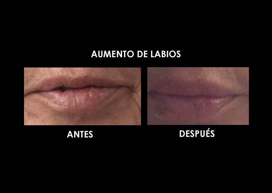 aumento-labios-clinica-medicina-estetica-palma-mallorca-3