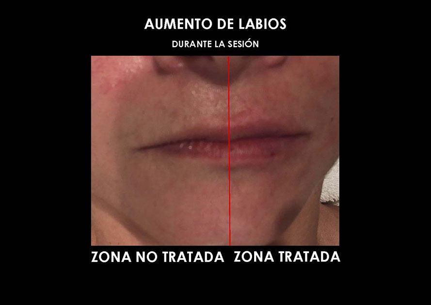aumento-labios-clinica-medicina-estetica-palma-mallorca