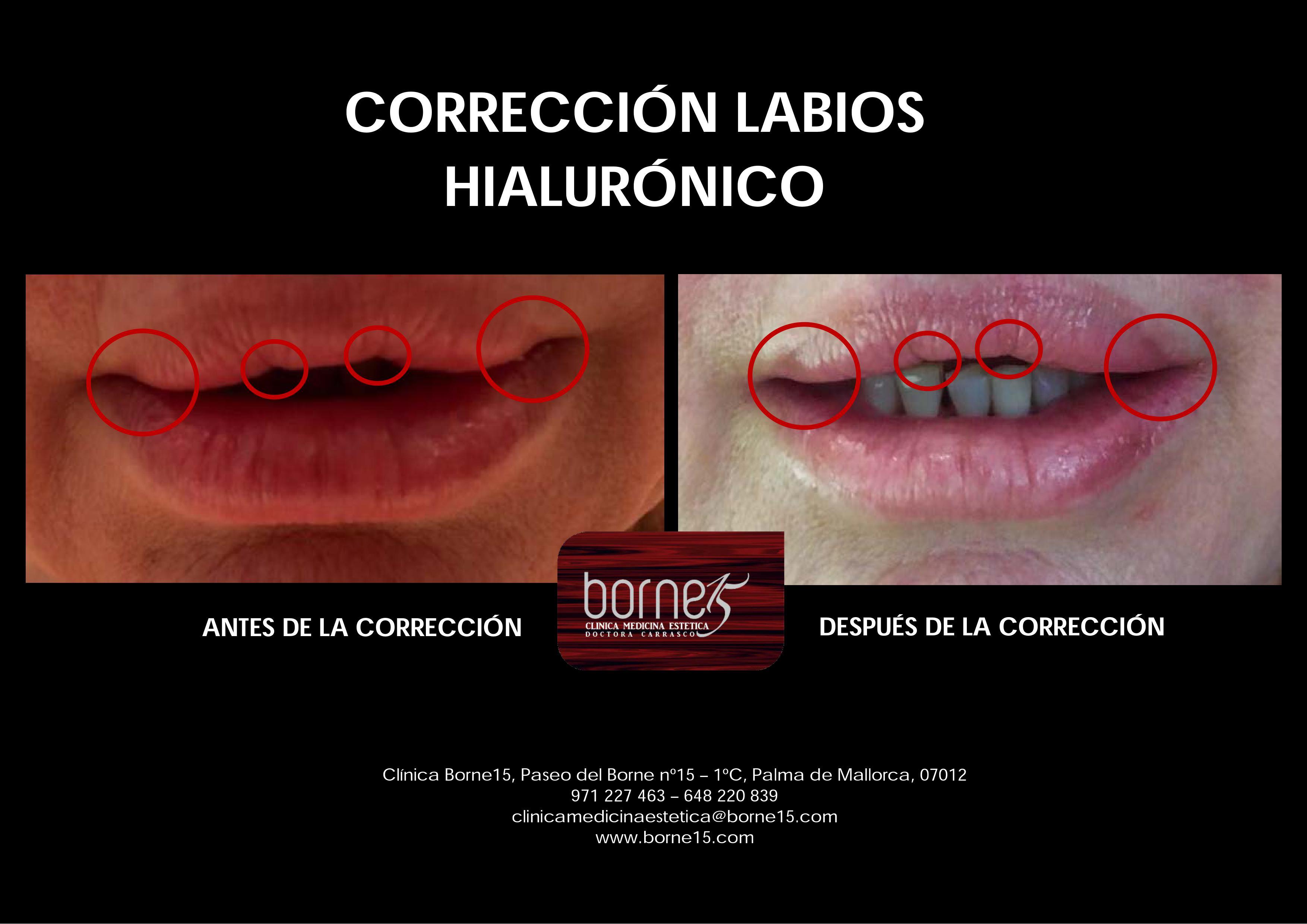correcion-labios-acido-hialuronico-palma-mallorca-clinica-medicina-estetica-borne-15