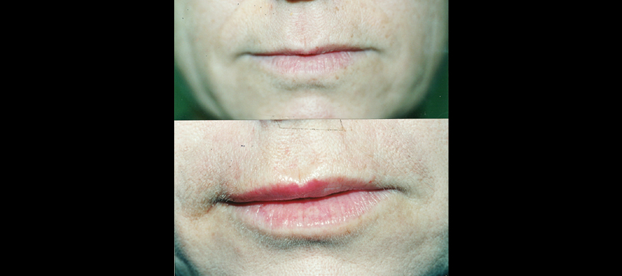 tratamiento de asimetría labial