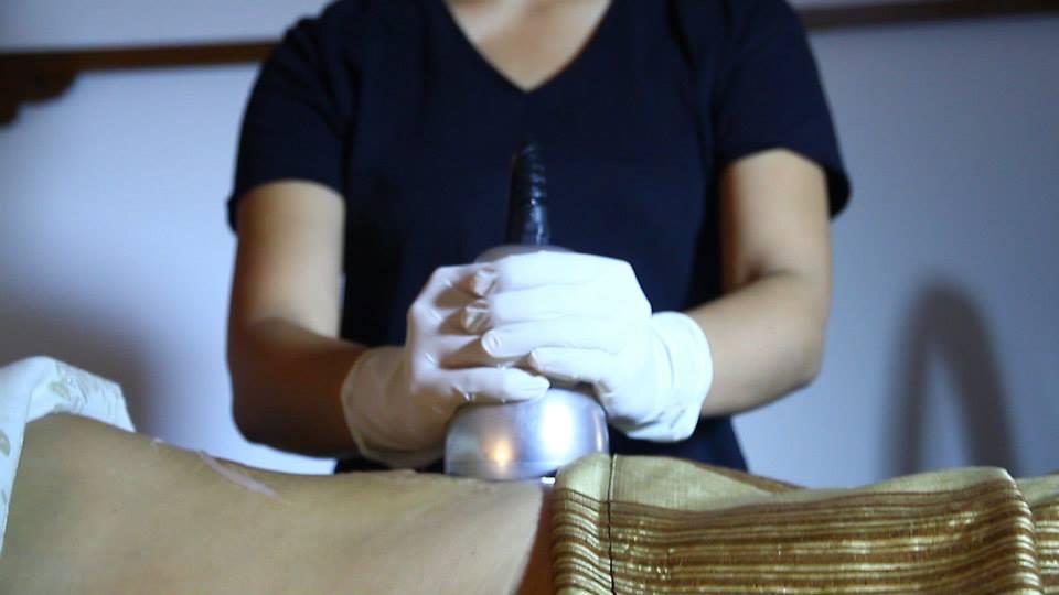 cavitacion-palma-mallorca-clinica-medicina-estetica-borne-15-2