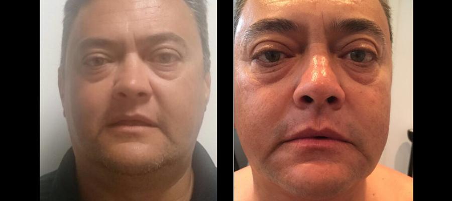 antes y despues hifu cuello y facial