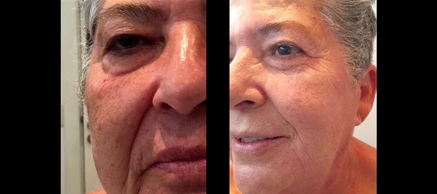 Hifu Facial Antes y Después D.