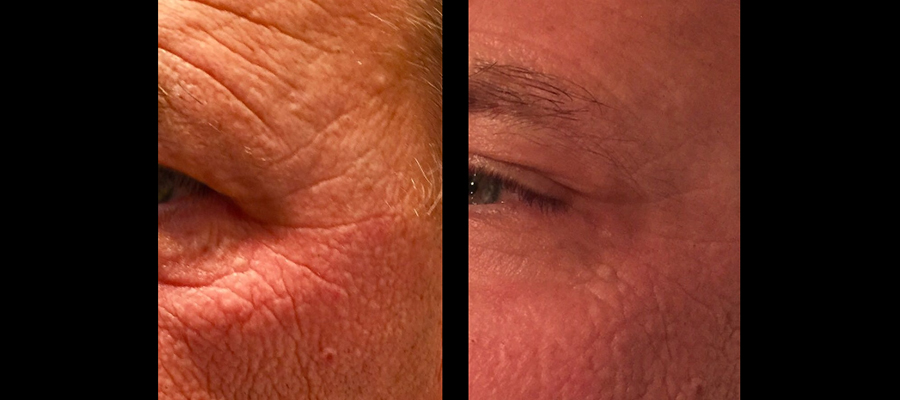 ANTES Y DESPUES HIFU FACIAL - 2
