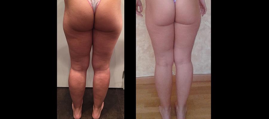 hifu piernas -2