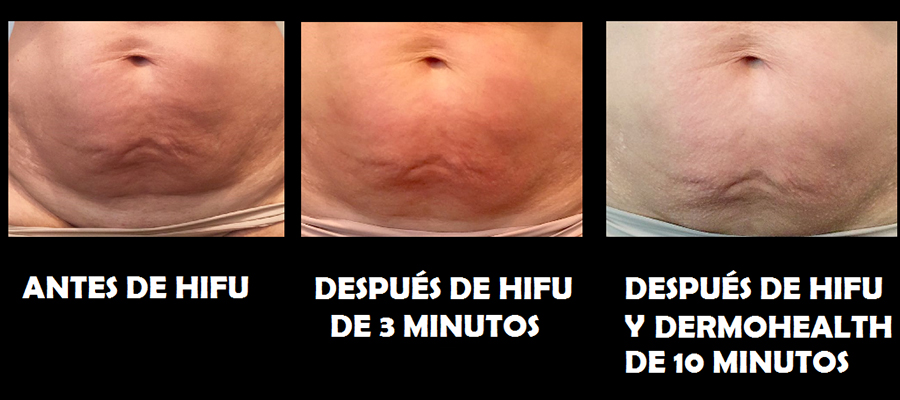 hifu y dermohealth m-l-g - copia