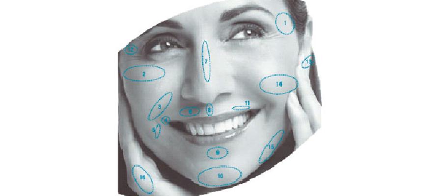 implante facial con radiesse