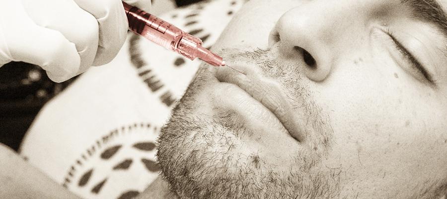implante labial hombre