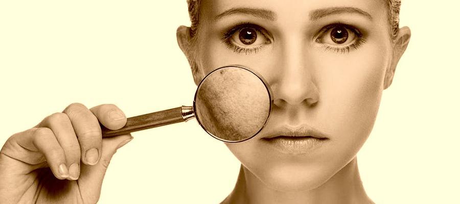 rejuvenecimiento-facial-IPL