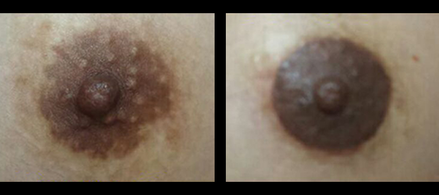 aureola micropigmentacion