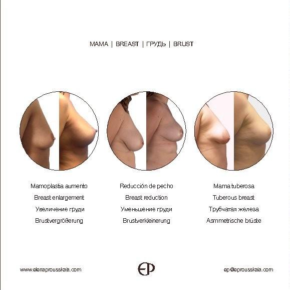 borne-15-cirujana-plastica-elena-prousskaia-clinica-medicina-estetica