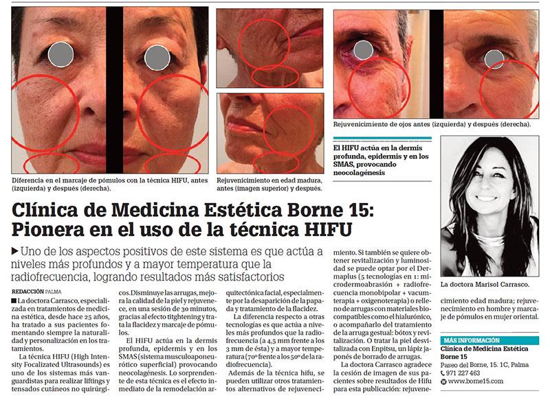 hifu-facial-borne-15-clinica-medicina-estetica