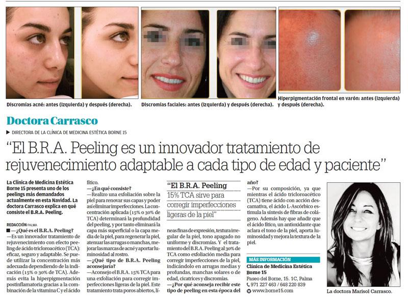 peeling-bra-clinica-medicina-estetica-borne15-palma-mallorca