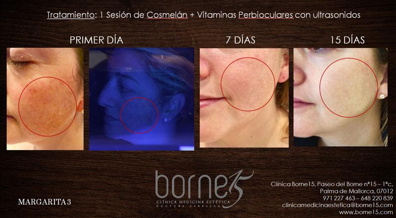 operacion-margarita-borne-15-clinica-medicina-estetica-palma-mallorca