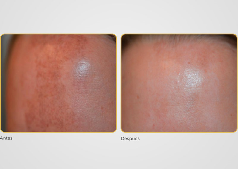 peeling-bra-rejuvenecimiento-facial-palma-mallorca-clinica-medicina-estetica-borne-15