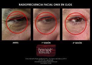 radiofrecuencia-onix-ojos-palma-mallorca-clinica-medicina-estetica