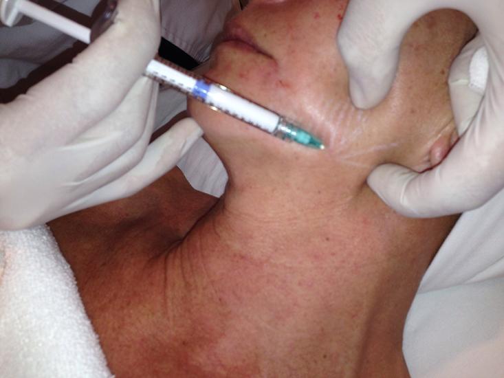 implantes-radiesse-palma-mallorca-clinica-medicina-estetica-borne-15