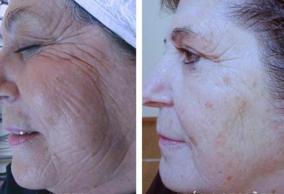 onix-facial-radiofrecuencia-palma-mallorca-clinica-medicina-estetica-borne-15