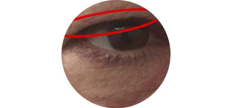 radiofrecuencia-facial-ojos-onix-palma-mallorca-clinica-borne15