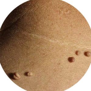 eliminar-verrugas-palma-mallorca-clinica-medicina-estetica-borne-15