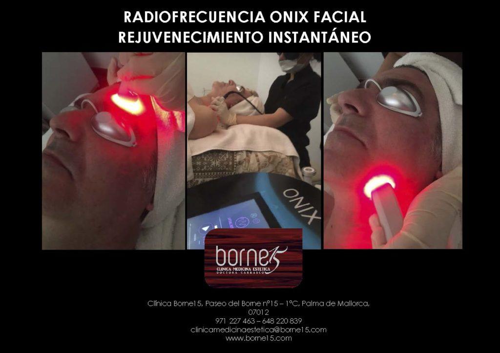 radiofrecuencia-facial-onix-ojos-palma-mallorca-borne-15