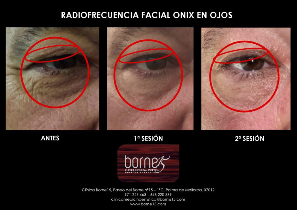 radiofrecuencia-onix-facial-ojos-palma-mallorca-clinica-medicina-estetica-borne-15