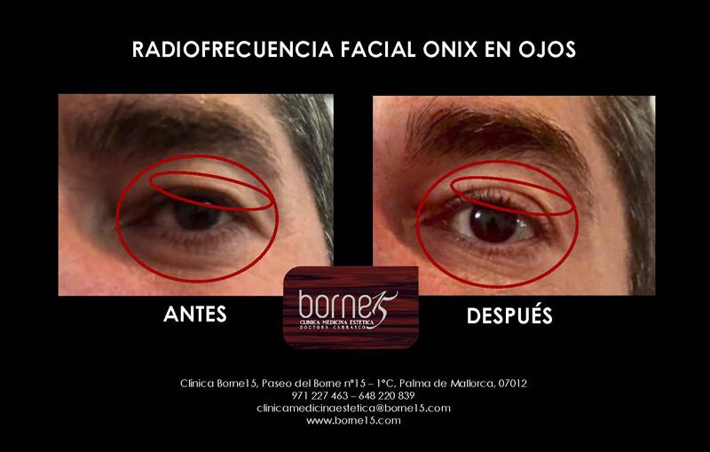 radiofrecuencia-onix-palma-mallorca-facial-ojos-clinica-medicina-estetica-borne-15