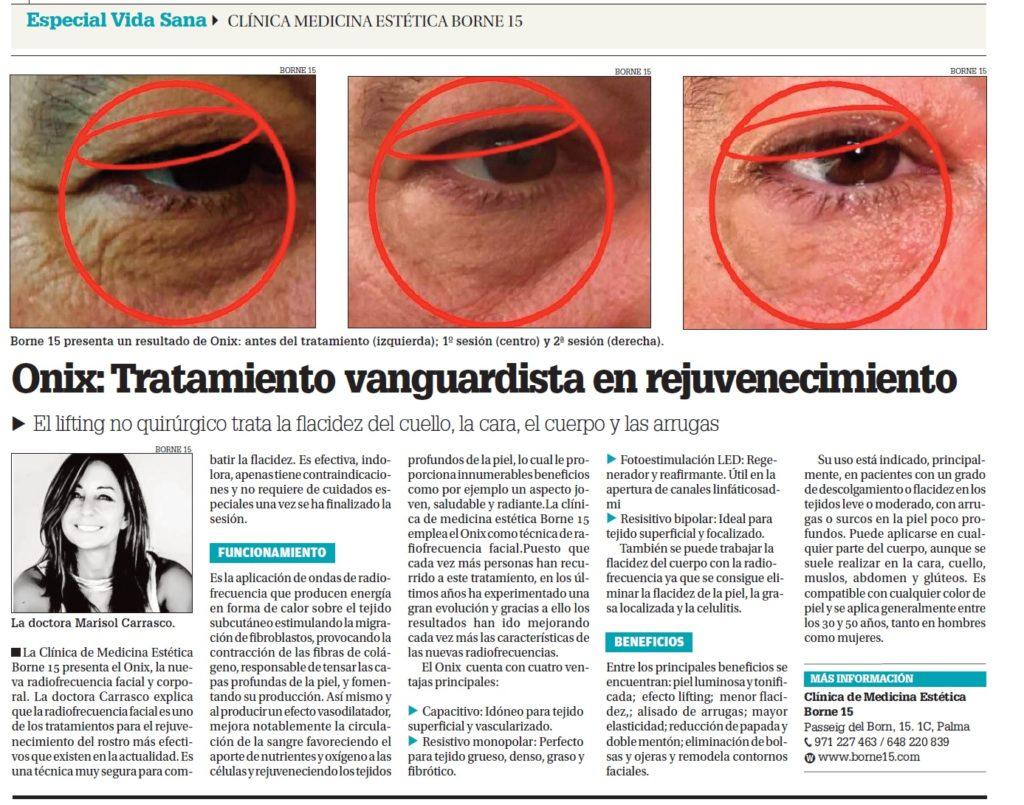 onix-mallorca-borne15-clinica-medicina-estetica